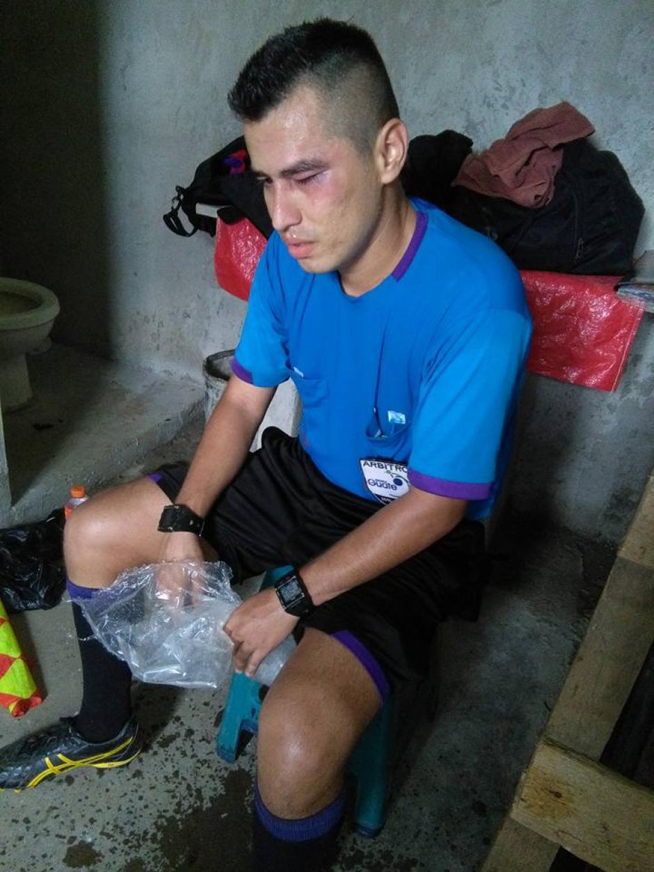 El silbante recibió atención médica debido a la agresión. (Foto: Servicable Canal 14/Facebook)