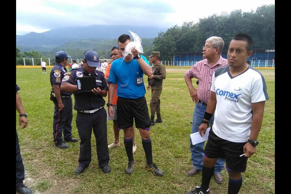 El árbitro resultó con varias heridas en el rostro. (Foto: Servicable Canal 14/Facebook)