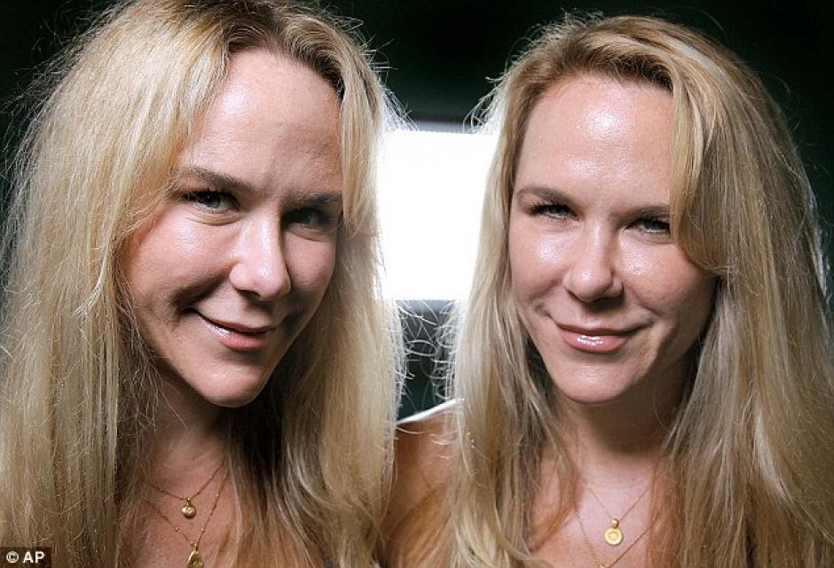 Según testigos, las gemelas discutían al momento del percance. (Foto: Daily Mail)