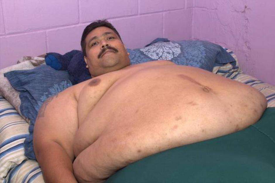 Moreno será operado en un hospital mexicano para tratar de reducir un peso que lo mantiene sin poder moverse. (Foto: elespectador.com)