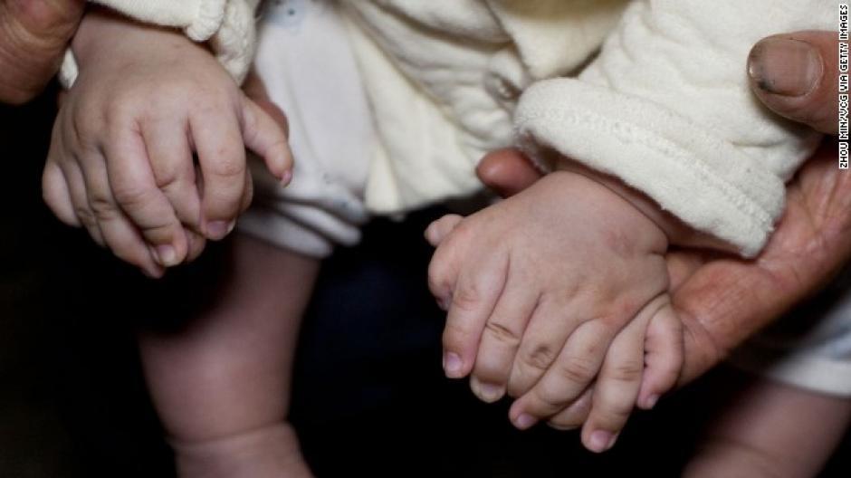 Los padres suspendieron la recolección de fondos para la operación ante los comentarios encontrados de los internautas. (Foto: CNN en Español)