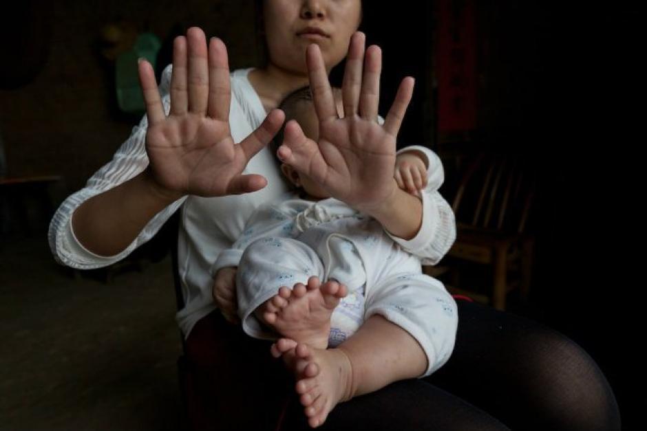 La madre cuenta con seis dedos en cada mano. (Foto: CNN en Español)