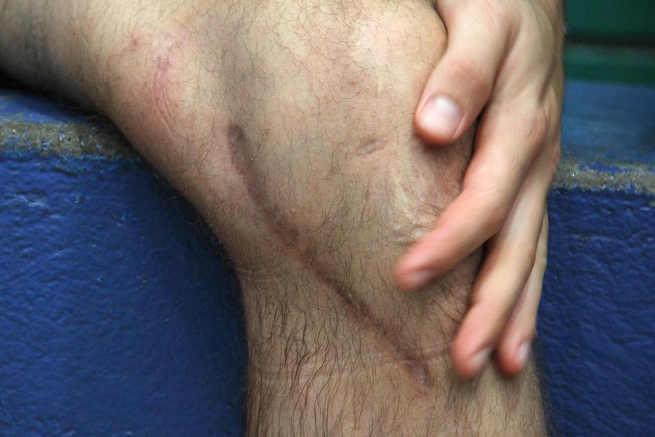 Una herida de nueve centímetros es el recuerdo de la lesión de rodilla izquierda que sufrió Kevin Cordón hace once meses. (Foto: Luis Barrios/Soy502)
