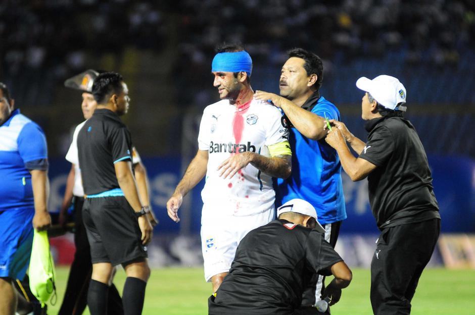 José Contreras sufrió un corte en su cabeza, tuvo que ser atendido en el primer tiempo. (Foto: Orlando Chile/Nuestro Diario)