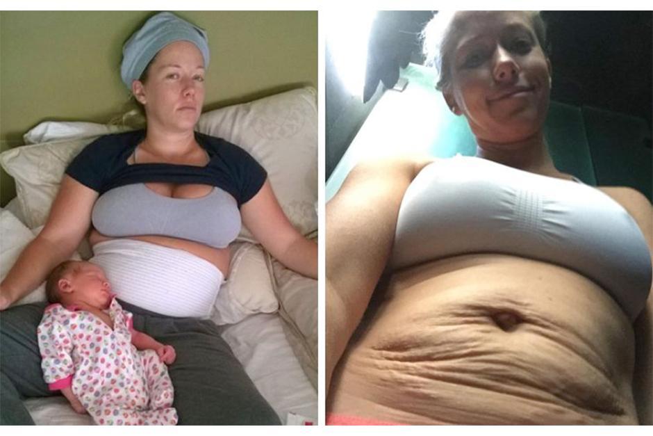 Kendal publicó y borró una foto en Instagram donde se ve el resultado de sus embarazos. (Foto: Instagram)