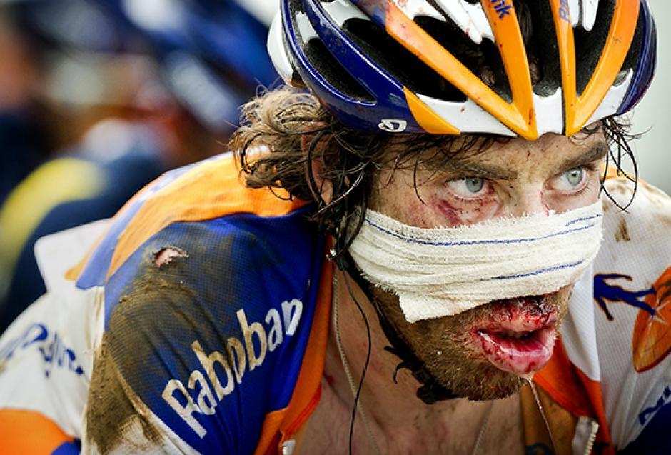 Al cruzar la meta, se le vio con vendajes y ensangrentado. Sin embargo, dio muestras del amor por el deporte, por lo que ha sido reconocido en el ambiente del ciclismo.