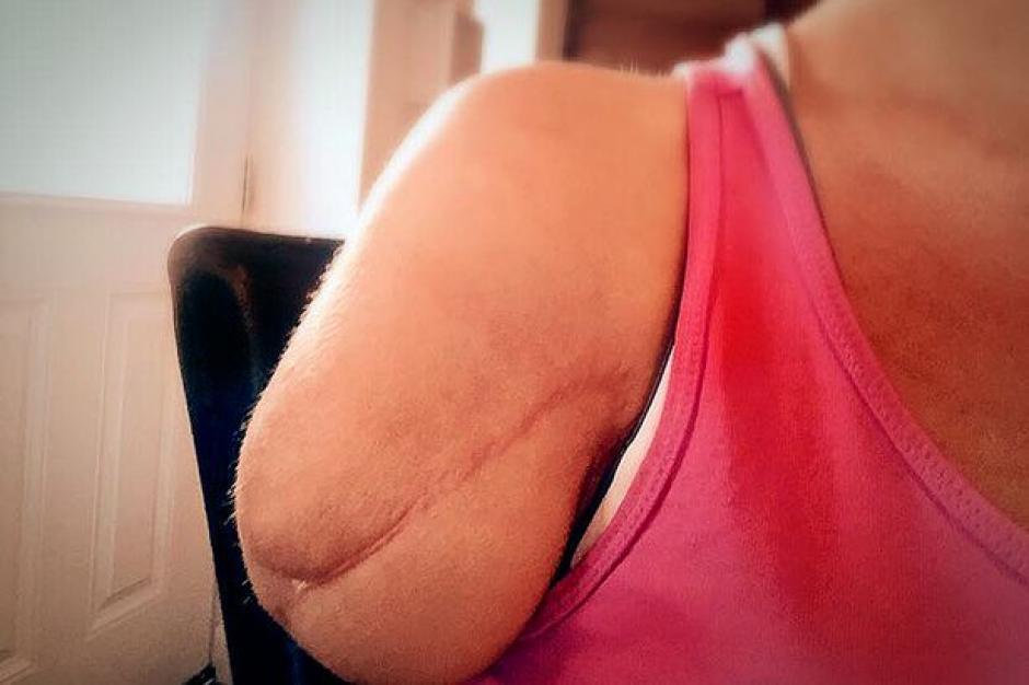 Los doctores tuvieron que amputar el brazo de la mujer. (Foto: sopitas.com)