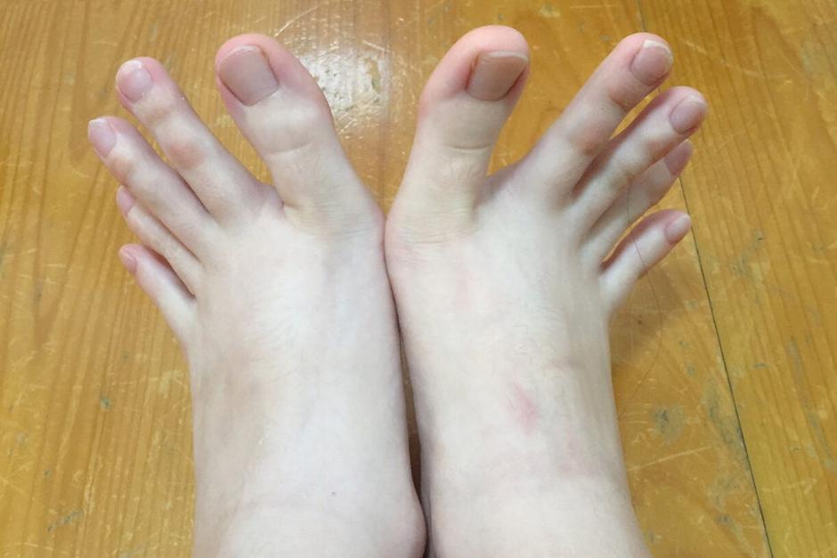 Una joven taiwanesa sorprendió al mundo con la forma de sus pies. (Foto: dcard.tw)