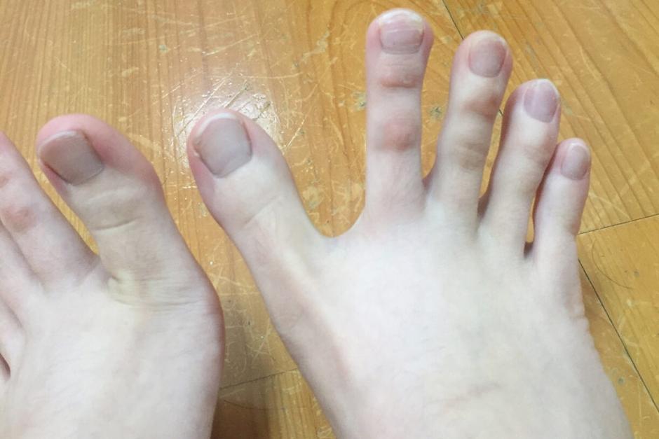 Al principio, la joven creía que sus pies eran normales, hasta que los comparó con los de otra persona. (Foto: dcard.tw)