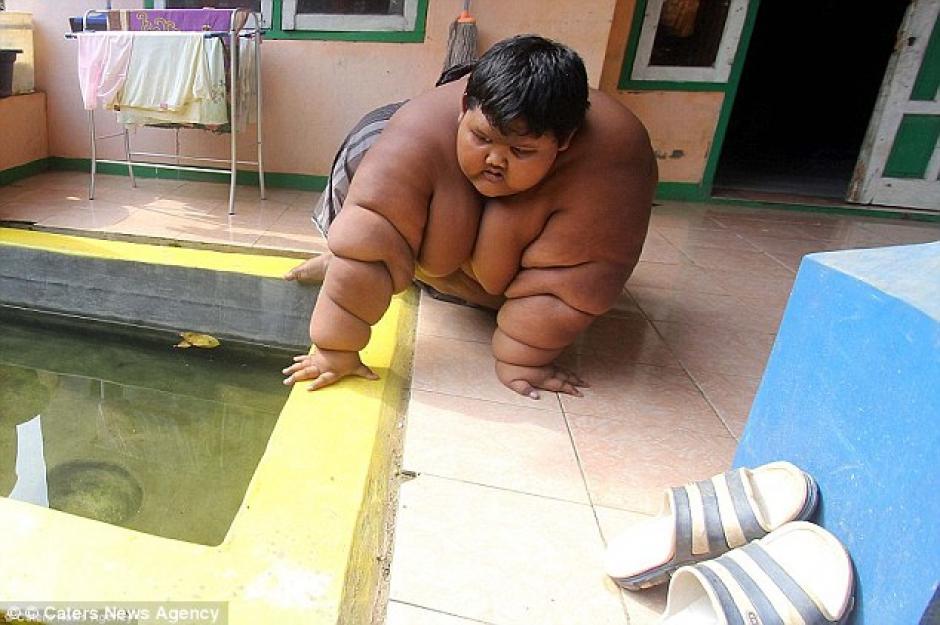 Debido a su obesidad, el pequeño pasaba metido en una pileta para mitigar el calor. (Foto: Daily Mail)