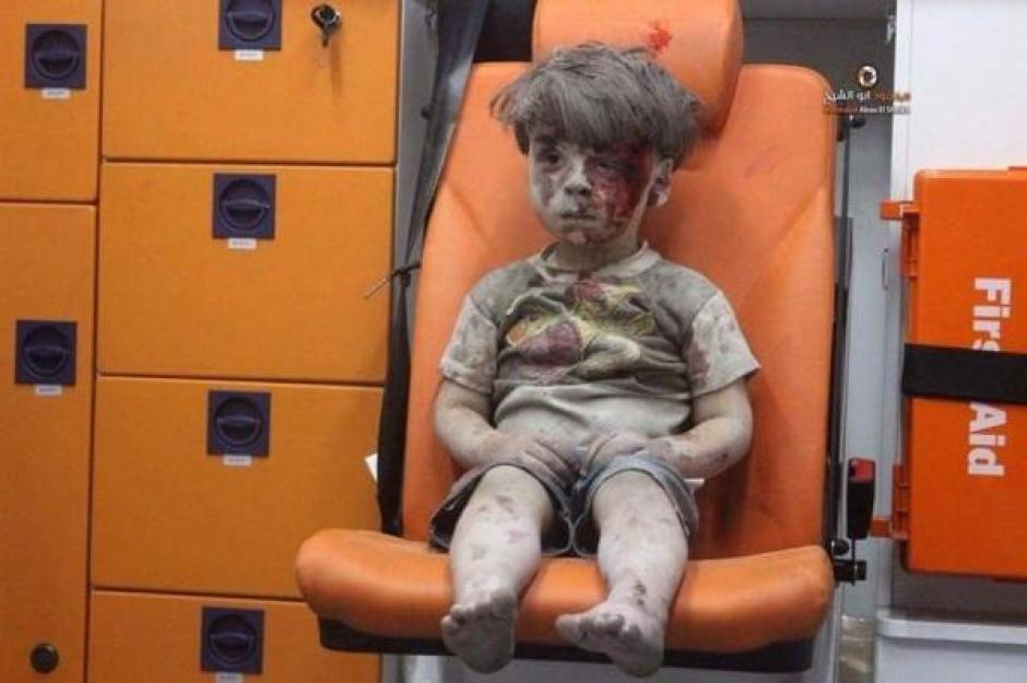 Omran de 5 años se convirtió en un ícono de la tragedia en Siria. (Foto: www.infobae.com)