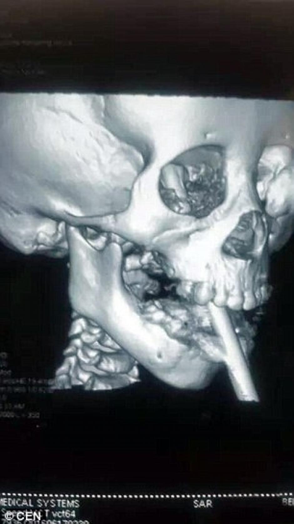 La radiografía muestra hasta donde llego el objeto. (Foto: Daily Mail)
