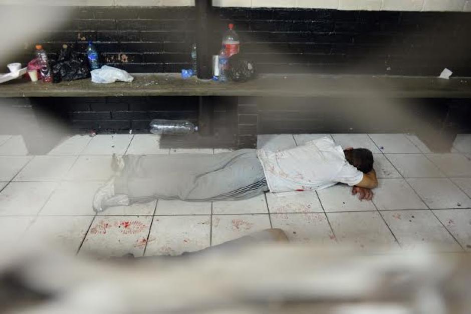 Uno de los heridos luego del enfrentamiento armado entre dos pandillas en la Torre de Tribunales. (Foto: Jesús Alfonso/Soy502)