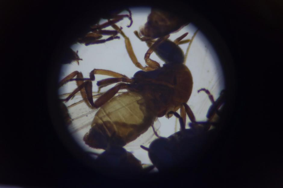 La larva de la oncocercosis puede provocar ceguera. (Foto: Alejandro Balán/Soy502)
