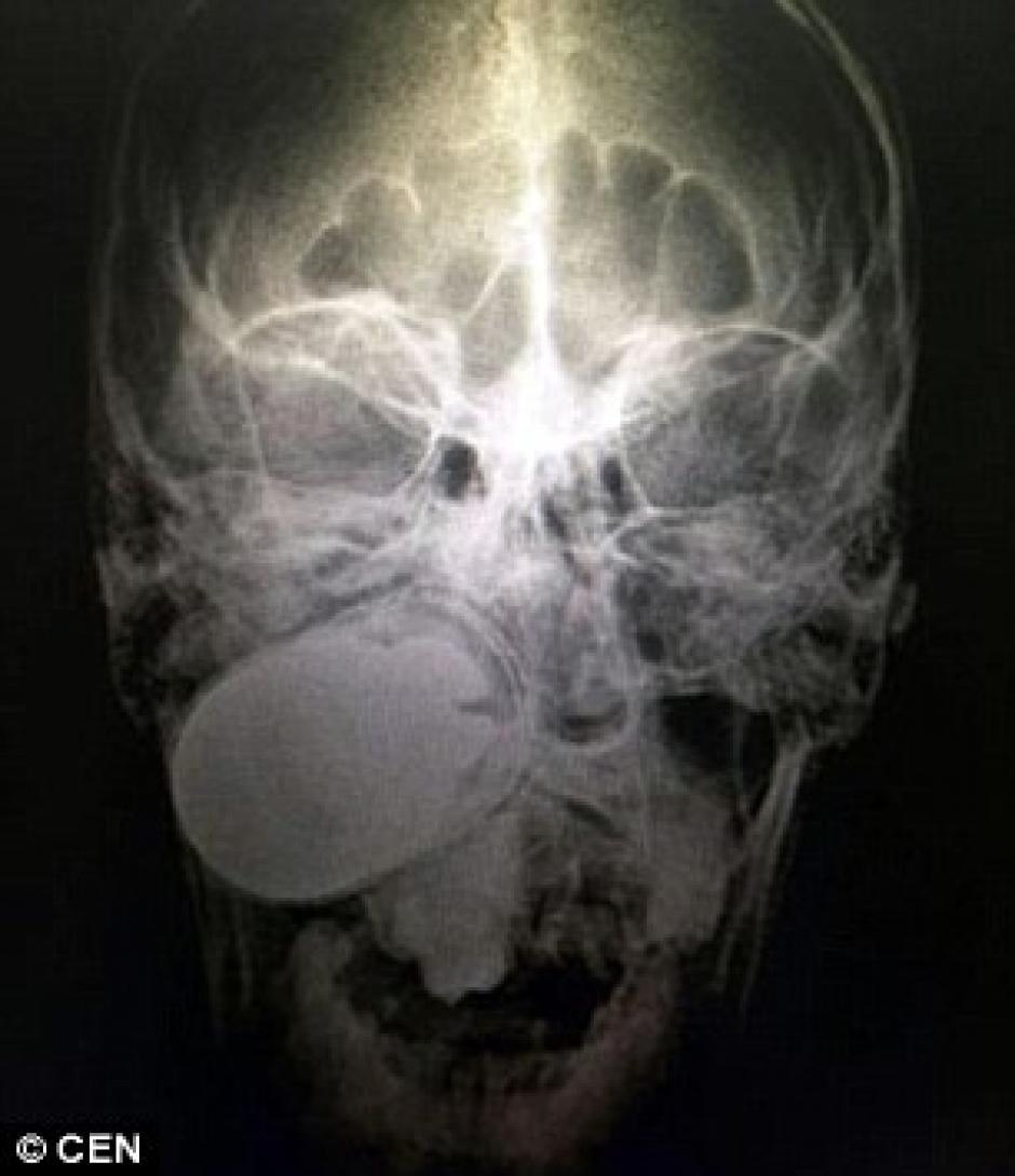 Imagen de la radiografía realizada al paciente. (Foto: Daily Mail)