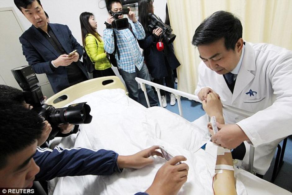 El doctor Guo Shuzhong, usó el cartílago de las costillas del hombre para construir la nueva oreja. (Foto: DailyMail)