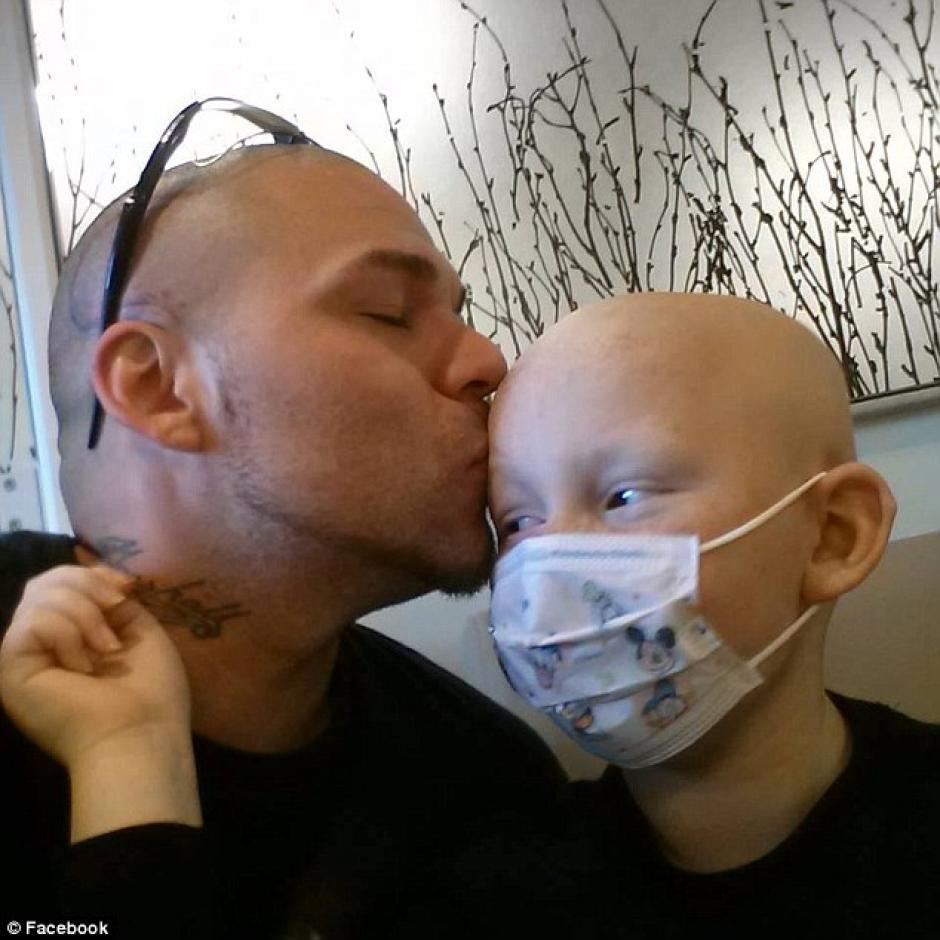 El pequeño fue operado de un tumor en la cabeza. (Foto: sopitas)
