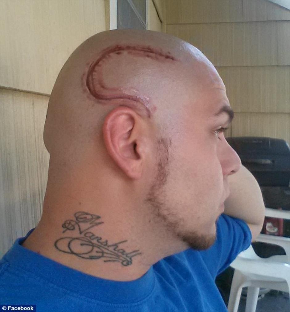 El niño se sentía mal por la cicatriz, así que su padre decidió tatuarse la imagen en el mismo lugar que el niño la tiene. (Foto: sopitas)