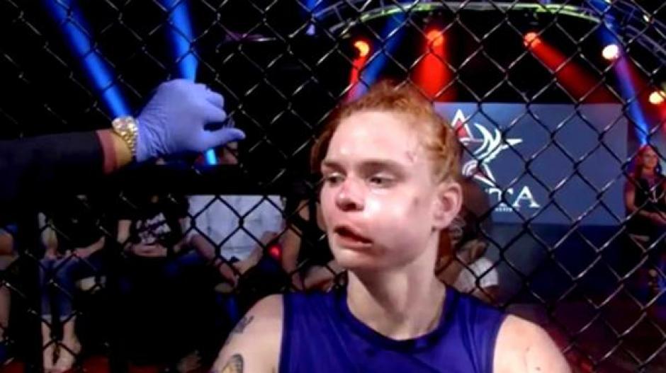 Así termino Peggy Morgan tras finalizar el combate. (Foto: Infobae)