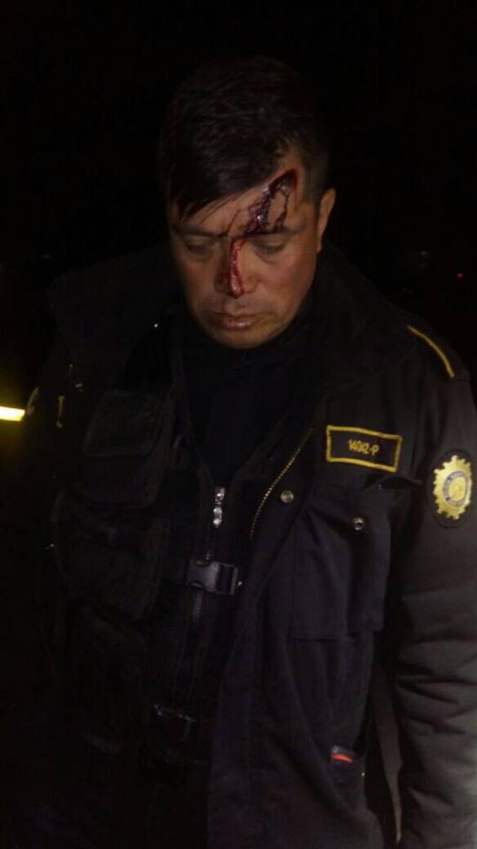 Uno de los agentes recibió un golpe en la cabeza. (Foto: Stereo 100/Facebook)