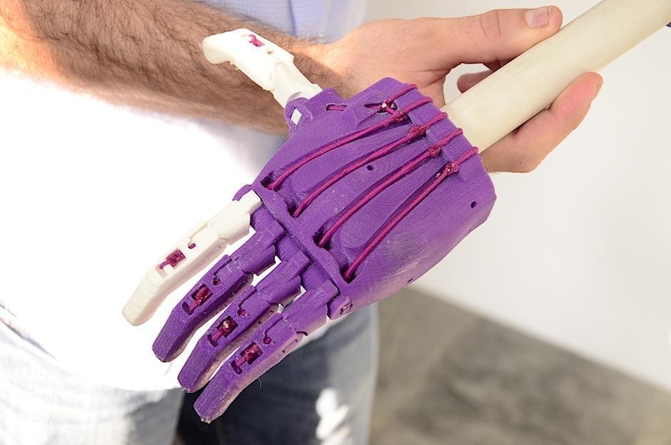 La prótesis funciona por medio del uso de elásticos que son activados por el movimiento del brazo de Keila. (Foto: Selene Mejía/Soy502)