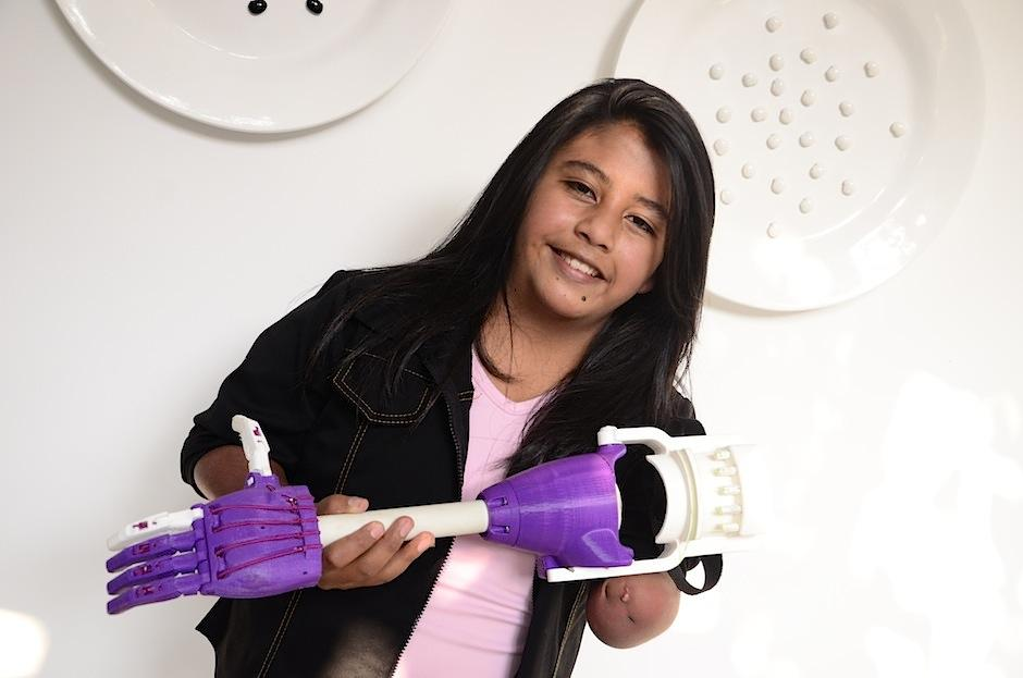 La primera prótesis 3D realizada en Guatemala beneficiará a muchos. (Foto: Selene Mejía/Soy502)