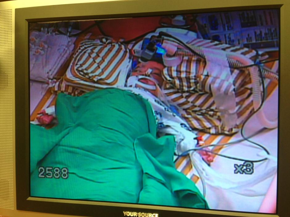La primera fotografía de Santiago después de la operación.