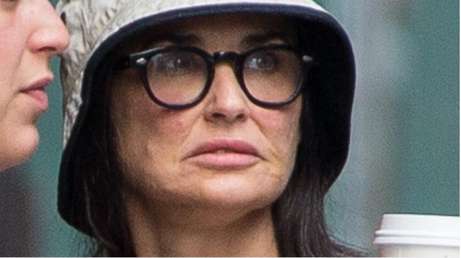 Muchos creen que Demi tuvo una reacción alérgica algún alimento o crema.