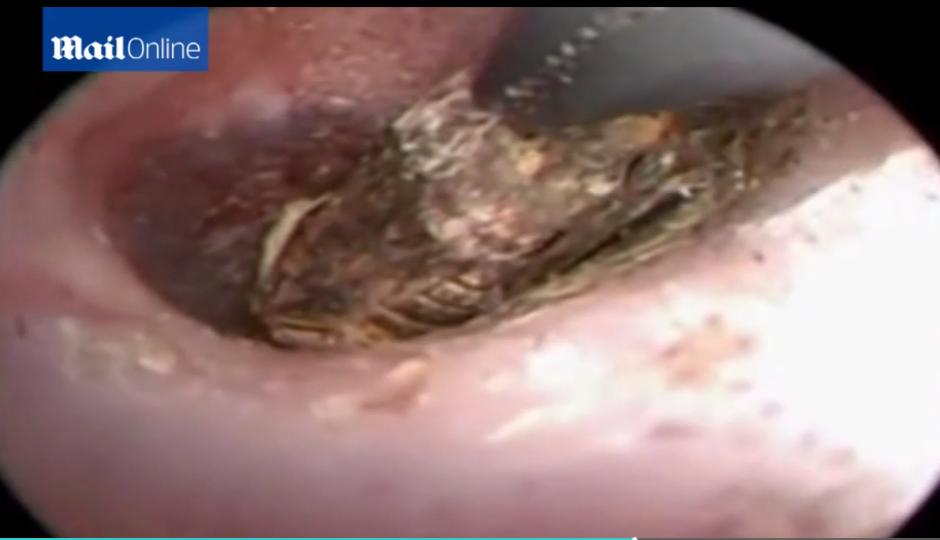 Un ciempiés fue removido del oído de una mujer en China