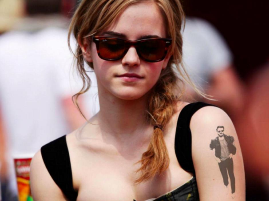 Hasta al brazo de Emma Watson ha llegado Ivor Noyek.
