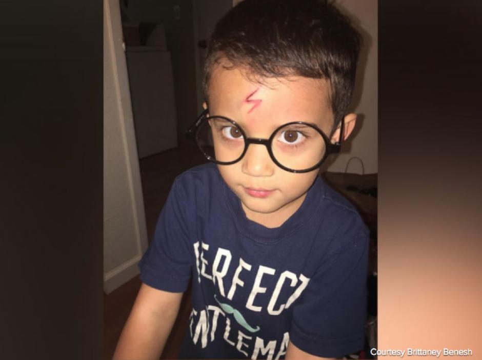 El niño quedó igual que Harry Potter luego que su mamá le dibujara el rayo para ocultar una herida. (Foto: El Huffington Post)