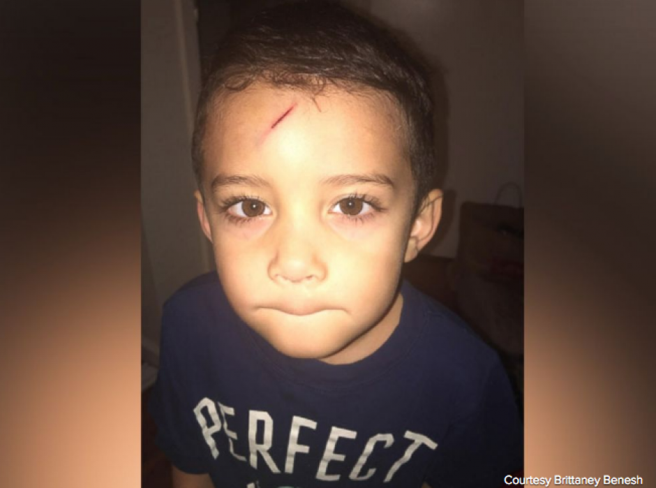 Así quedó el niño después del incidente doméstico. (Foto: El Huffington Post)