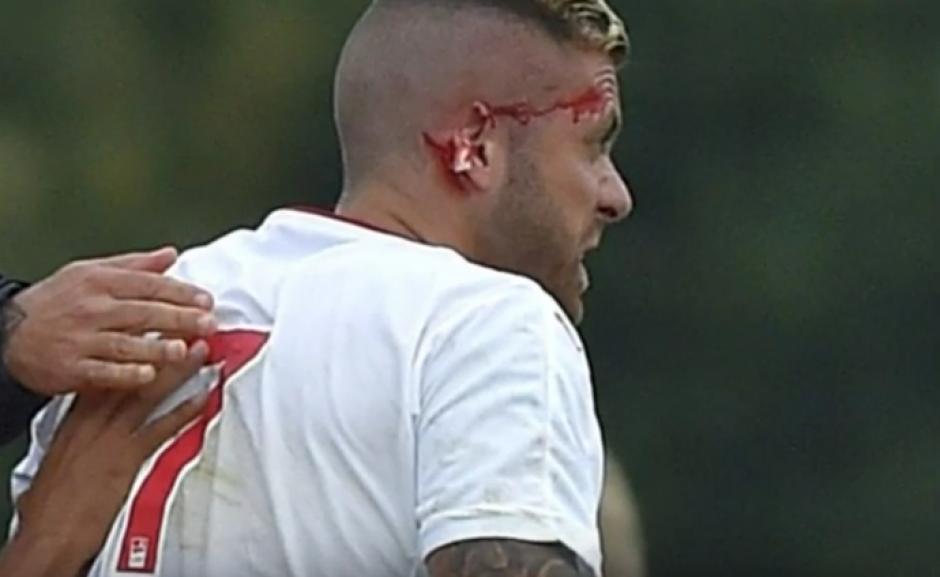 El jugador francés ha formado parte de equipos como el PSG y el AC Milan. (Imagen: Captura de pantalla)