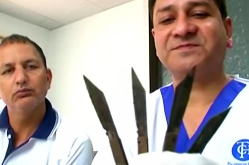 Los médicos mostraron los hallazgos luego de la operación. (Imagen: Captura de pantalla)