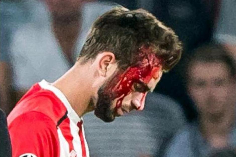 El futbolista no pudo lanzar un penal por eso, y su compañero lo falló. (Foto: Twitter)