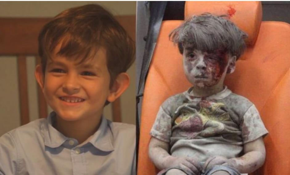 Este niño (derecha) se volvió el rostro de la brutal guerra en Siria. (Foto: http://altavoz.pe)