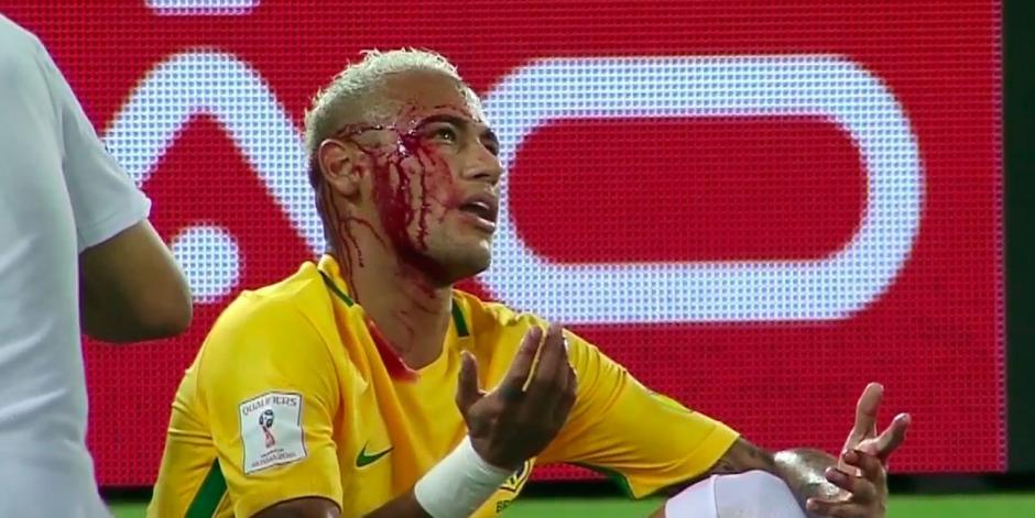 El brasileño recibió un feo codazo. (Captura de Pantalla)