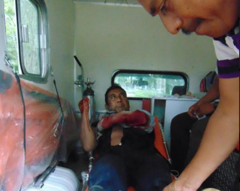 El pescador sufrió heridas de gravedad en un brazo. (Foto: Beos/Petén)