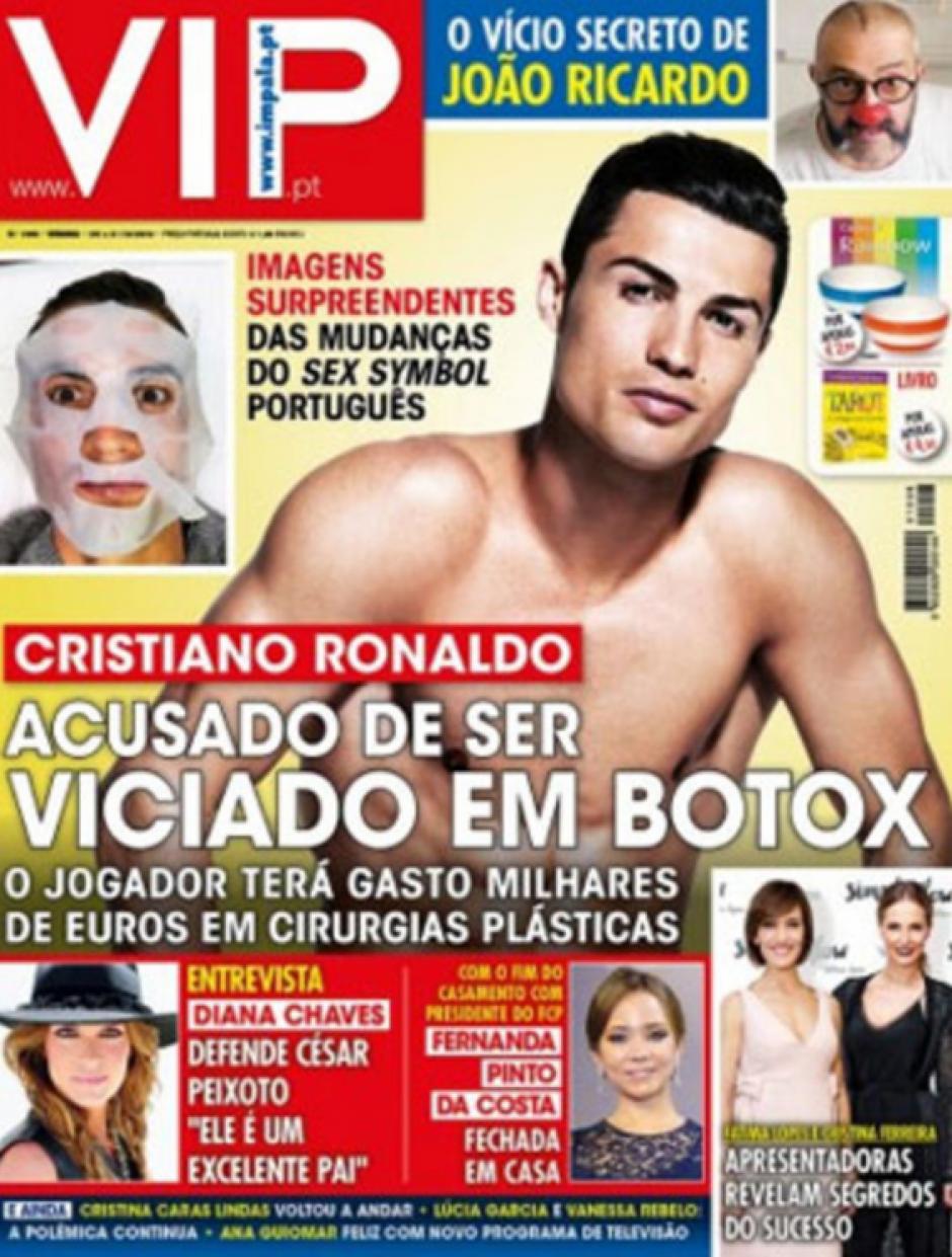Esta es la revista VIP que señala que Ronaldo usa mucho botox. (Foto: VIP)