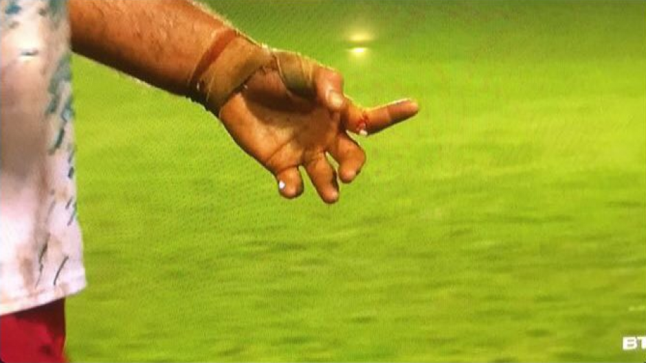 Hornwill sufrió una fractura en su dedo índice. (Twitter)