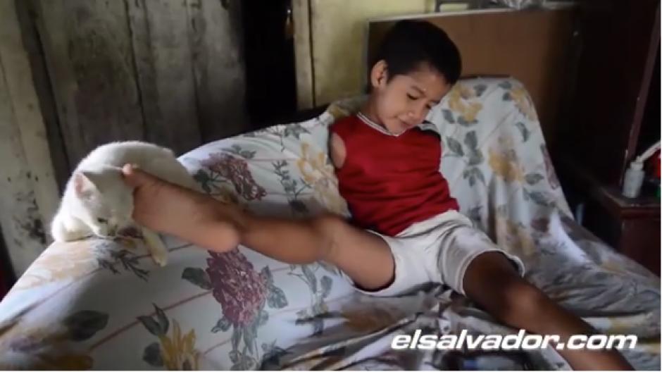 El niño confiesa no necesitar prótesis para desenvolverse. (Foto: El Salvador.com)