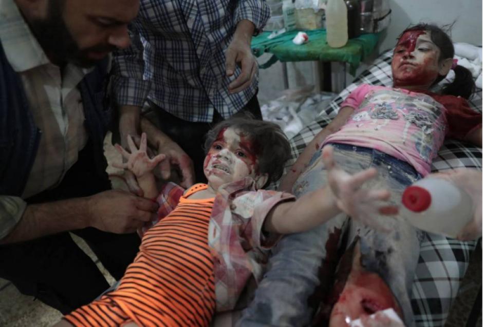 Niñas de siria heridas en un hospital de Duma.  (Foto: Abd Doumany/AFP)
