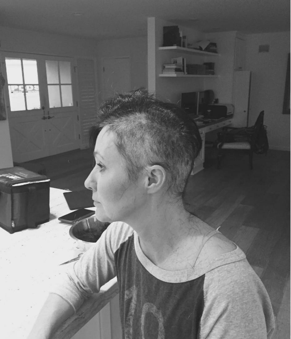 Shannen Doherty publicó seis imágenes del duro proceso. (Foto: Instagram/Shannen Doherty)