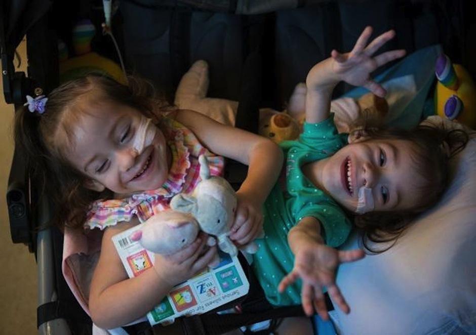 Eva y Erika fueron separadas luego de 2 años de ser siamesas. (Foto: Sacramento Bee)
