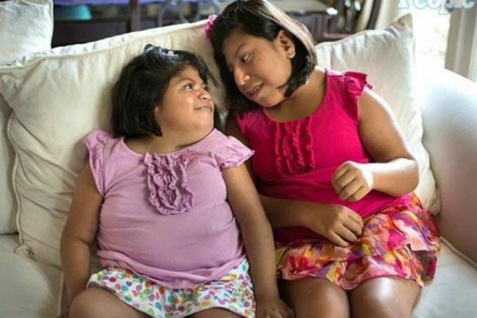 Las siamesas nacieron unidas por la cabeza y fueron separadas mediante una operación en 2003. (Foto: Twitter)