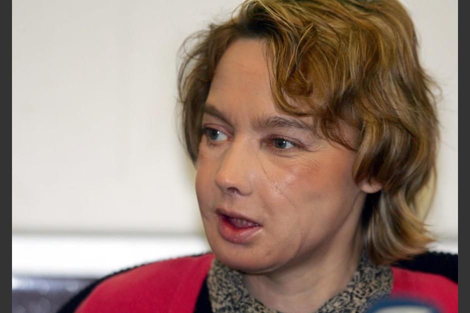 Isabelle Dinoire fue intervenida en noviembre de 2005 luego de ser atacada por su perra. (Foto: nytimes.cpm)