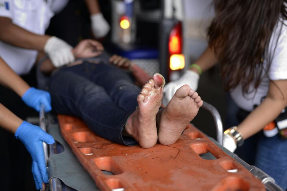 Tras el incendio en el Hogar Seguro Virgen de la Asunción se reportó a 20 adolescentes fallecidos y más de 30 heridos. (Foto: Wilder López/Soy502)