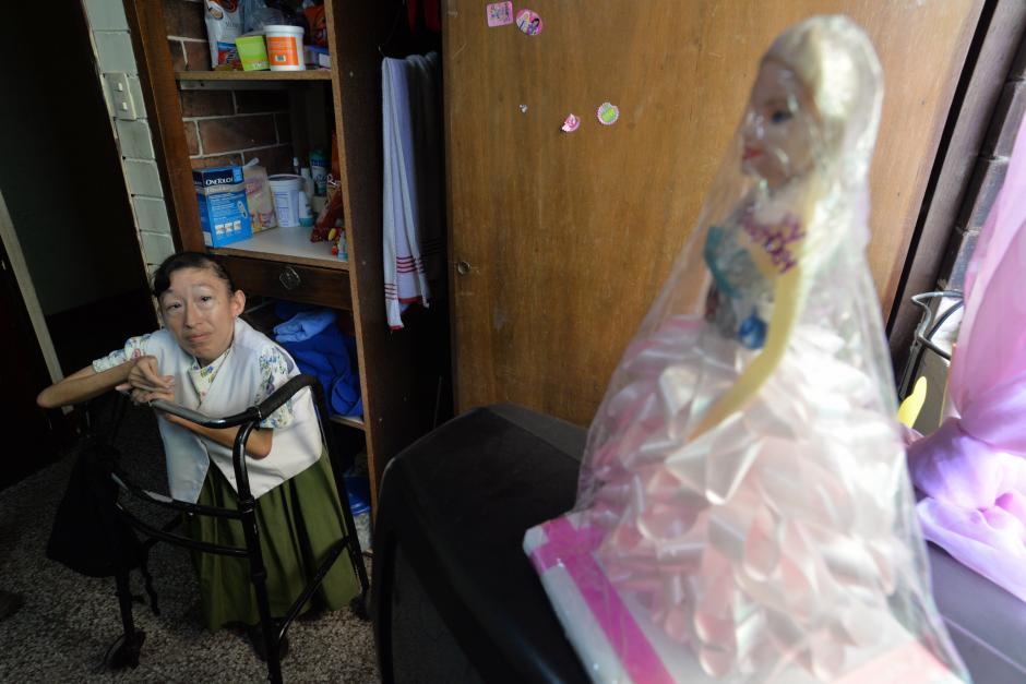 Claudia Paola García tiene 40 años y nació con deformidades congénitas. (Foto: Wilder López/Soy502)