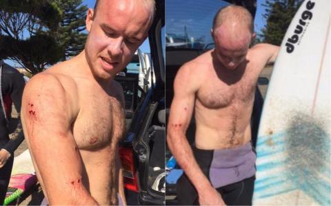Surfista se salva de un ataque de tiburón por un video viral