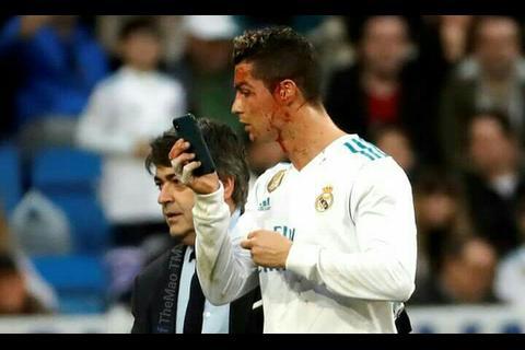 Ronaldo sufre corte en el rostro y pide un celular para ver la herida